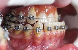 Ортогнатия, исправление прикуса, ортогнатическая хирургия, ортохирургия