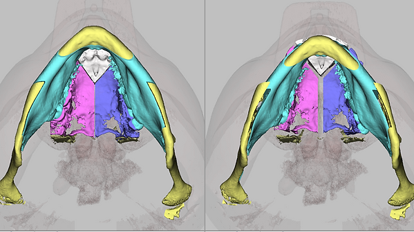операция по Le Fort 1, остеотомия челюсти, ортогнатия