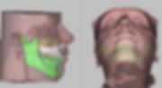 Внедрение верхней челюсти при наличии «десневой улыбки», ортогнатическая хирургия