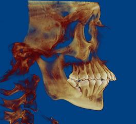 билатеральная остеотомия, ортогнатическая хирургия