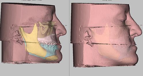 Ортогнатия, исправление прикуса, ортогнатическая хирургия, ортохирургия, моделирование двучелюстной операции