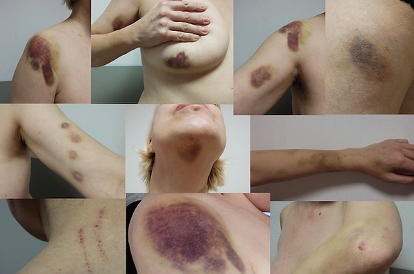 injuries .png