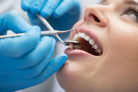 dental cleanings, teeth cleaning, general dentist, family dentist