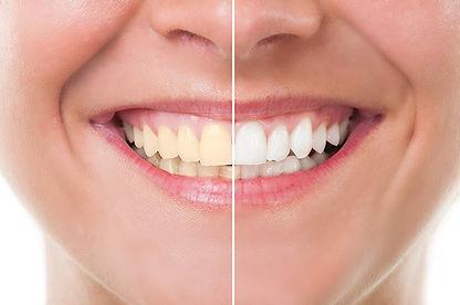 teeth whitening, general dentist, general dentistry