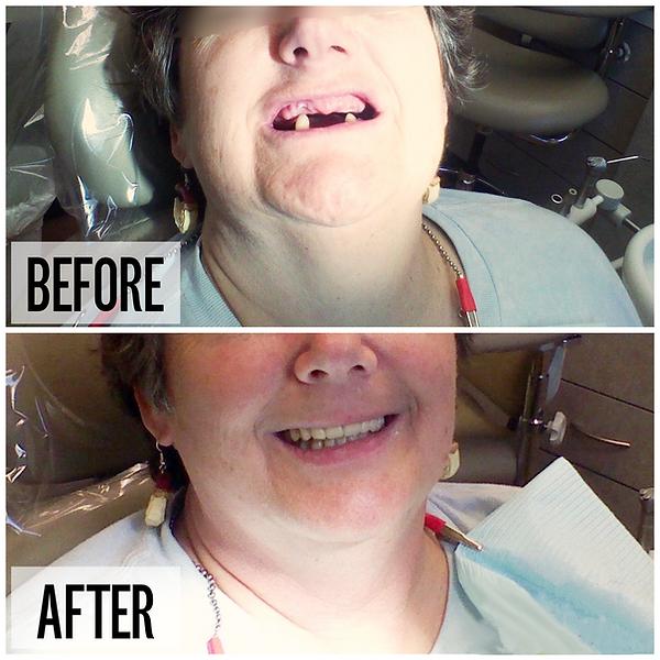 before and after dentist in lancaster, dentures in lancaster, affordable dentures