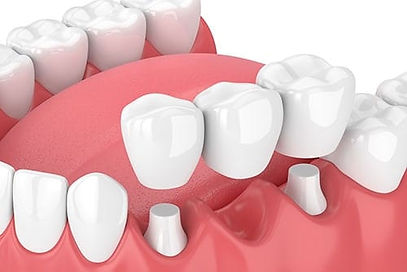 Dental Crowns Carlisle