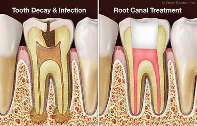 root canal treatment, tooth decay, tooth infection, general dentist in Lancaste