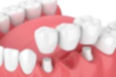 dental-crown-bridges-min.jpg