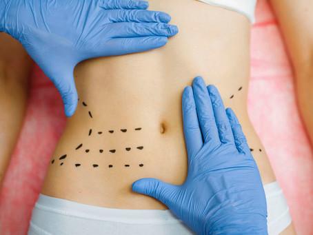 Listados de Cirugías en Centros Meravelles