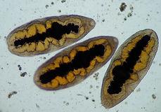 Paragonimus mexicanus metacercariae