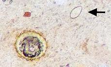 Ascaris lumbricoides and Amphimerus spp. egg
