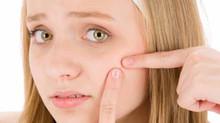 Tips Mencegah Timbulnya Jerawat di Wajah