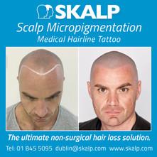 Hair Loss Balbriggan