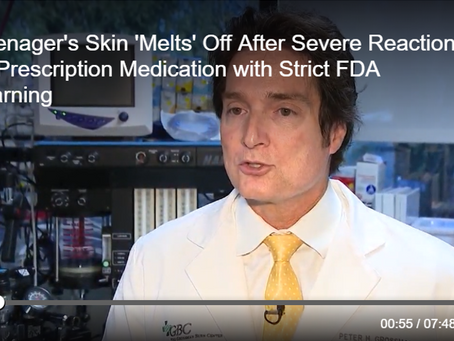 Dr. Peter H. Grossman Discusses Medication-Related Causes of Stevens Johnson Syndrome