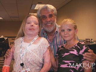 Burn Survivors Mourn The Loss of Make-Up Artist