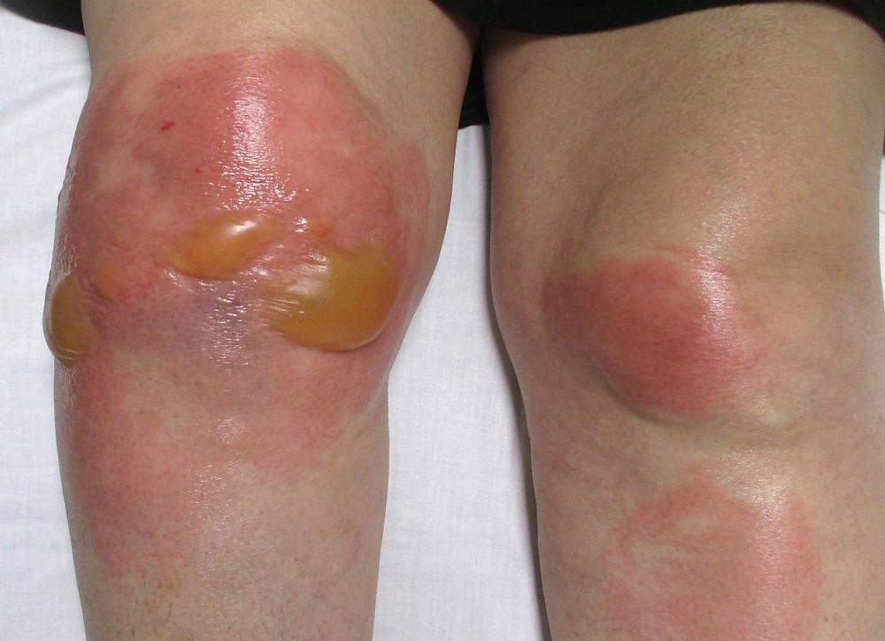 Chilblains (AKA erythema pernio)