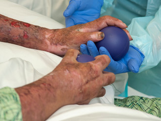 What to Expect While Recovering from a Burn Injury