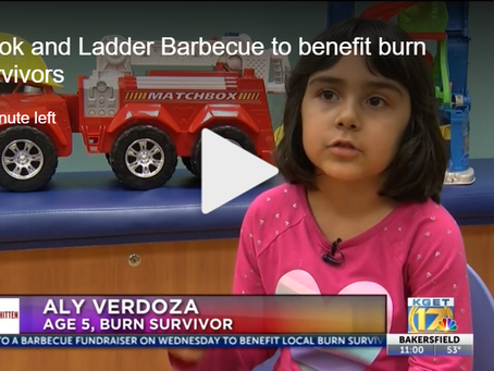 Five-year-old Recovers from Second-Degree Treadmill Burns