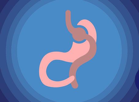 Laparoscopic gastric bypass with NUBARICS®