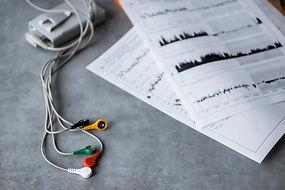 interpretar-resultados-holter-24-horas-e
