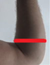 elbow.PNG