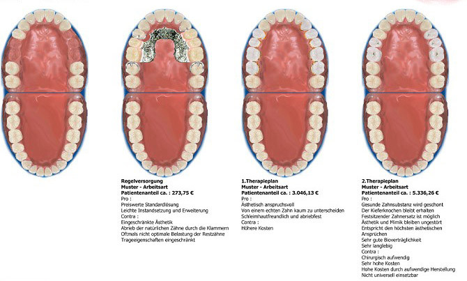 Zahnersatz Regelversorgung und Varianten
