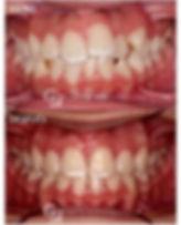 📌_Caso_ortodoncia_brackets_metalico__En