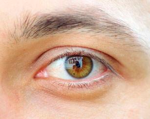 Dez Lições Extraídas da Cirurgia dos meus Olhos » Joel Beeke