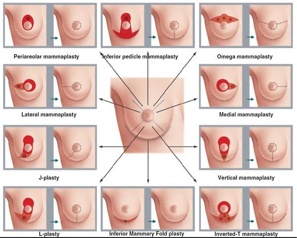 cirurgia mamaria.png