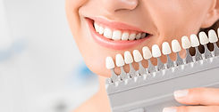 New Orleans teeth whitening Beautiful smile and white teeth of a young woman. Matching the shades of the implants or t
