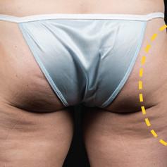 f-03-thighs-before.jpg