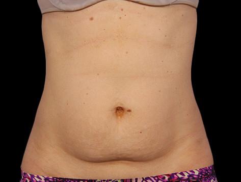 f-01-abdomen-before.jpg