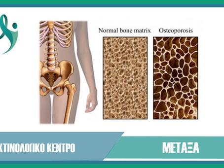 Τι είναι οστεοπόρωση
