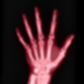 black-and-white-bones-hand-207496 (1).jp