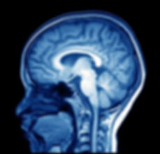 magnetic resonance image (MRI) of the br
