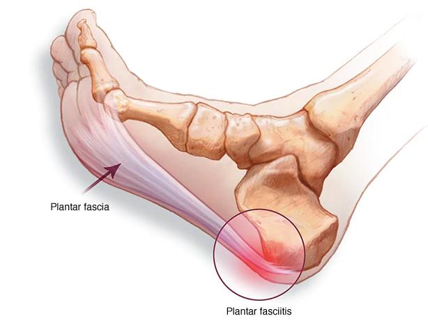 La fascitis plantar es una patología que cursa con dolor en la planta del pie, sobre todo en la zona del talón.