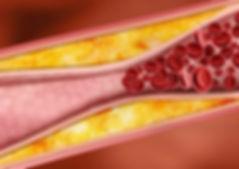 Atherosclerose.jpg