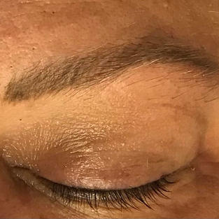 Healed Brows after one session