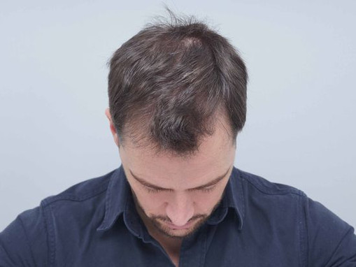 Manchester Model - How My Hair transplant saved my life