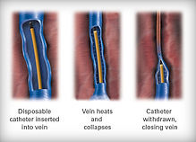 Radiofrequency Ablation Tucson
