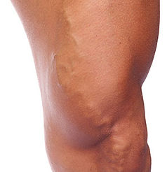 Varicose Vein Treatment Arizona