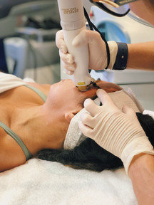 The procedure takes approximately 30-40 minutes for a full facial treatment. We then recommend application of ice and daily use of moisturizer with SPF 30 sunscreen. You may apply makeup or shave soon after treatment.