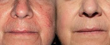 rosacea treatment tucson