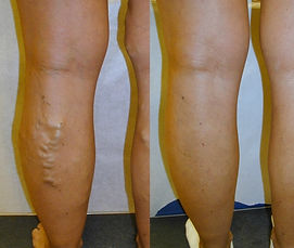 varicose vein removal tucson
