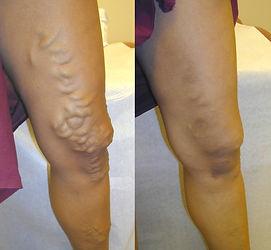 varicose vein removal oro valley