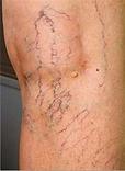spider vein treatment tucson