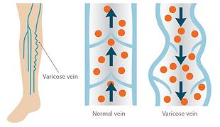 varicose vein treatment tucson