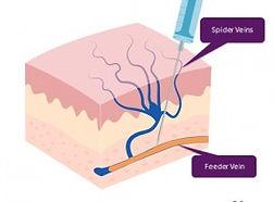 sclerotherapy tucson