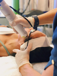 Fractional laser treatment is performed using only topical anesthesia (a numbing agent) in most cases. If your skin is more sensitive, we will ensure that you are made comfortable. The topical anesthetic is applied one hour prior to treatment.