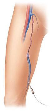 Endo-venous Laser Treatment